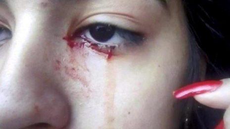 15-летняя девочка плачет кровью